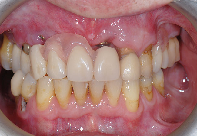 Denture in place during healing